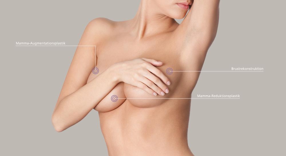 Die Operation nach der Verkleinerung der Brust der Folge